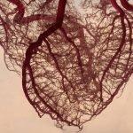 angioplastica o bypass