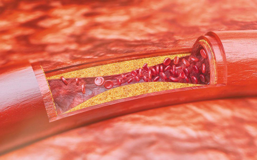 Aterosclerosi, di cosa si tratta